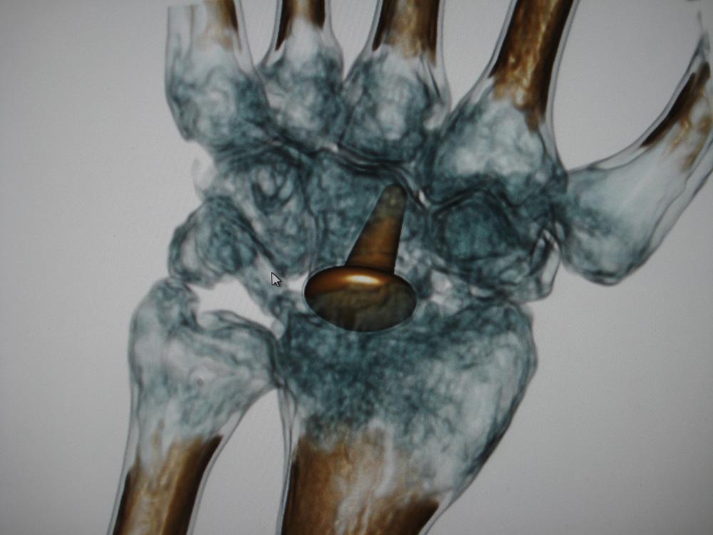 Individuelle Behandlungen in der handchirurgischen Praxis Starnberg ...