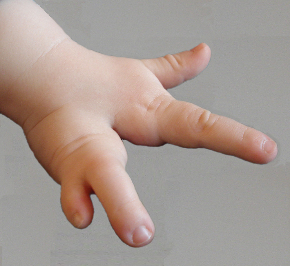 Individuelle Behandlungen In Der Handchirurgischen Praxis Starnberg